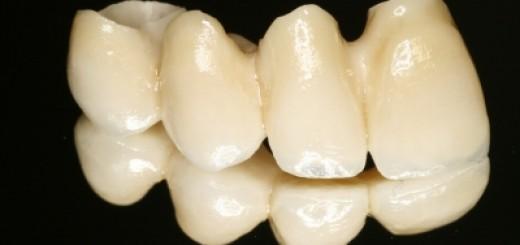 Zahnkrone aus Keramik
