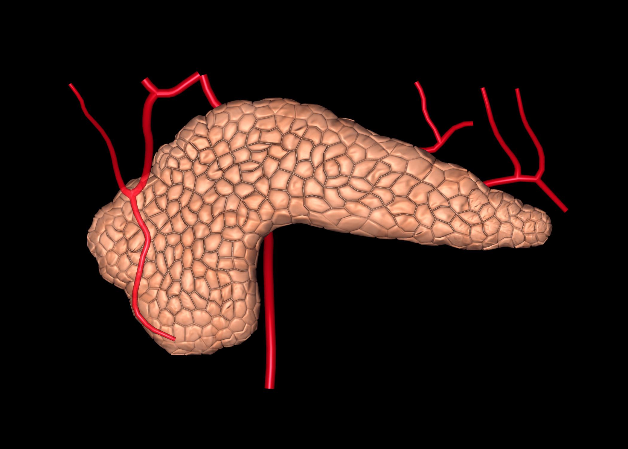 Bauchspeicheldrüsenkrebs Pankreaskarzinom Ursachen Beschwerden