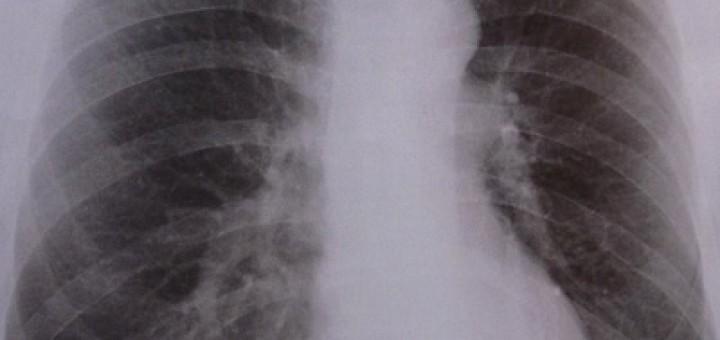 Röntgen Thorax