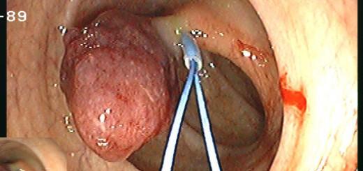 Polypektomie: Darmpolypen können endoskopisch entfernt werden