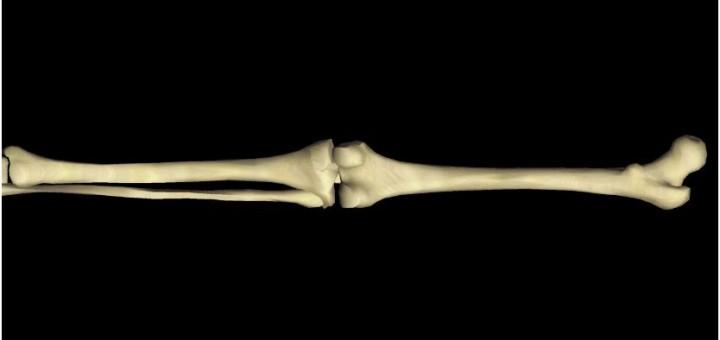 Röhrenknochen
