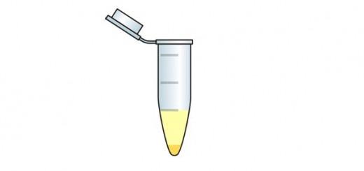 Probenbehälter für Laboruntersuchung