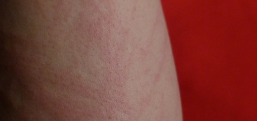 Hautrötung