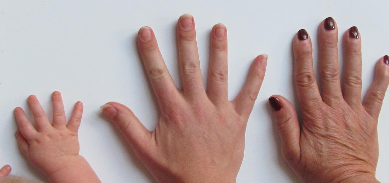 Krätze (Skabies) - Ursachen, Beschwerden, Diagnose, Behandlung ...