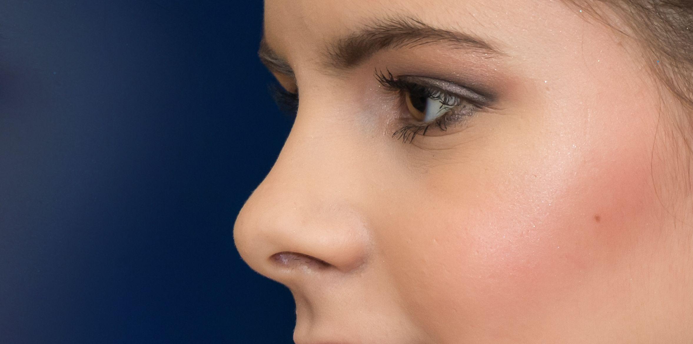 Nase (Nasus) - Gesundmed – Medizin und Gesundheit im Web