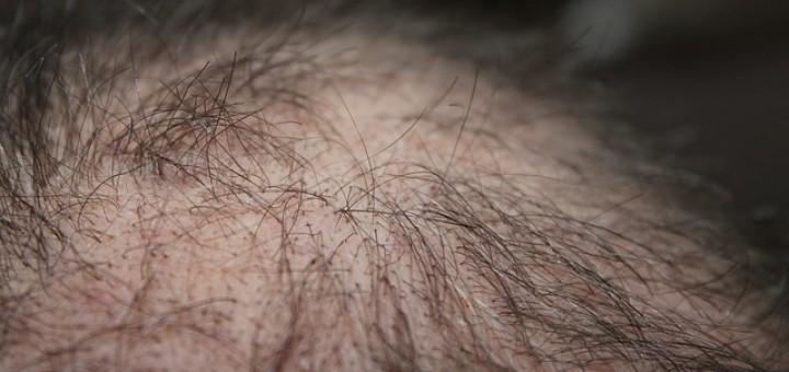 Haarausfall, Haare, Kopfhaut