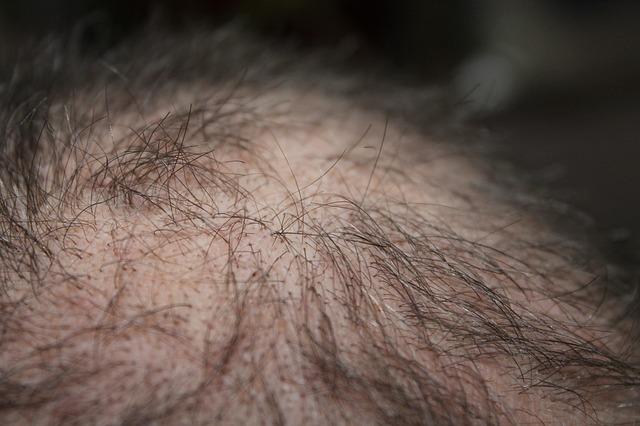 haarausfall alopezie ursachen beschwerden diagnose. Black Bedroom Furniture Sets. Home Design Ideas