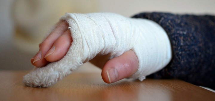 gebrochene Hand