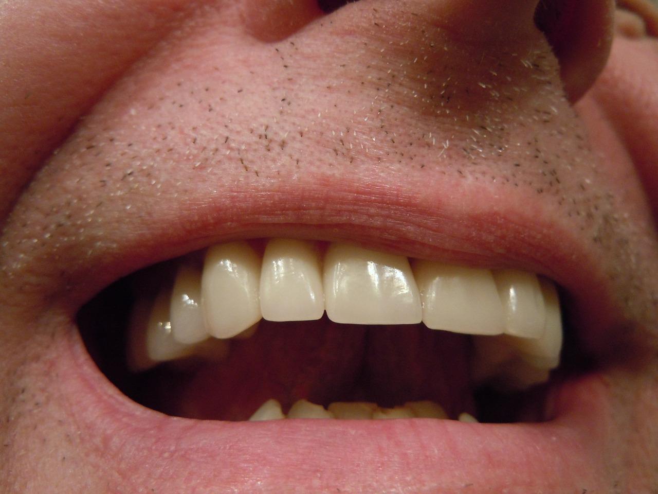 Zähne (Dentes) - Gesundmed – Medizin und Gesundheit im Web